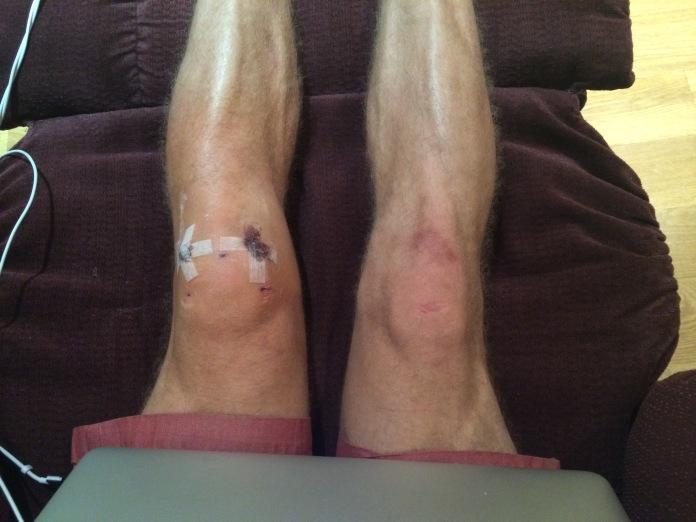 Knee model. Yeah, that's me.